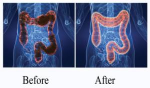 Πριν και μετά την υδροθεραπεία